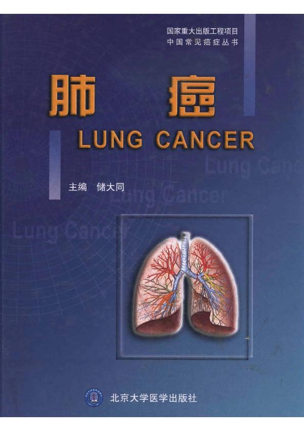 肺癌,北京大学医学出版社,.pdf