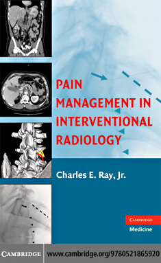 Pain Management in Interventional Radiology.pdf