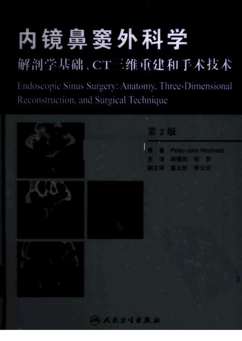 高清,书签 韩德民 张罗主译 内镜鼻窦外科学-解剖学基础、CT三维重建和手术技术 第二版2006....pdf