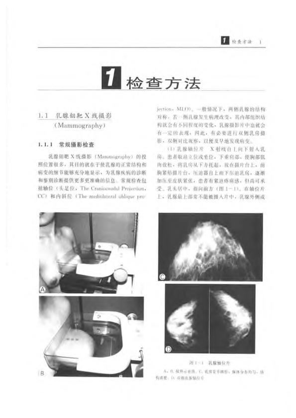 乳腺疾病影像诊断学.pdf